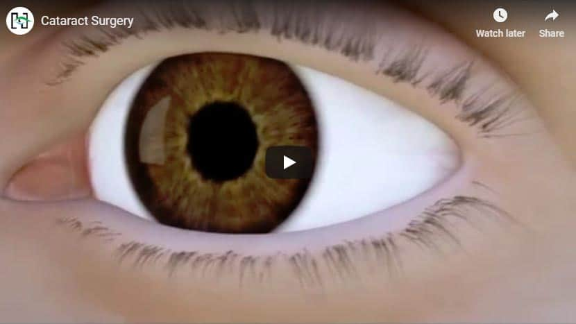 Cataract Surgery at Sydney Eye Hospital Video